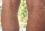 Coureurs, cyclistes : points rouges sur les jambes