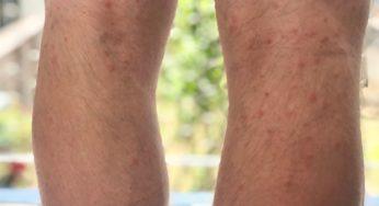 Courir après une fracture du tibia et du péroné